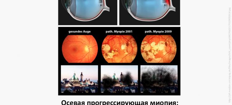 Осевая миопия Корсакова Н.В. Александрова К.А.