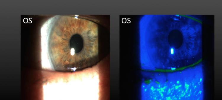 Циклоспорин А 0,05% Сухой глаз после хирургии