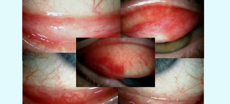 Циклоспорин 0,05% Системная аутоимунная патология