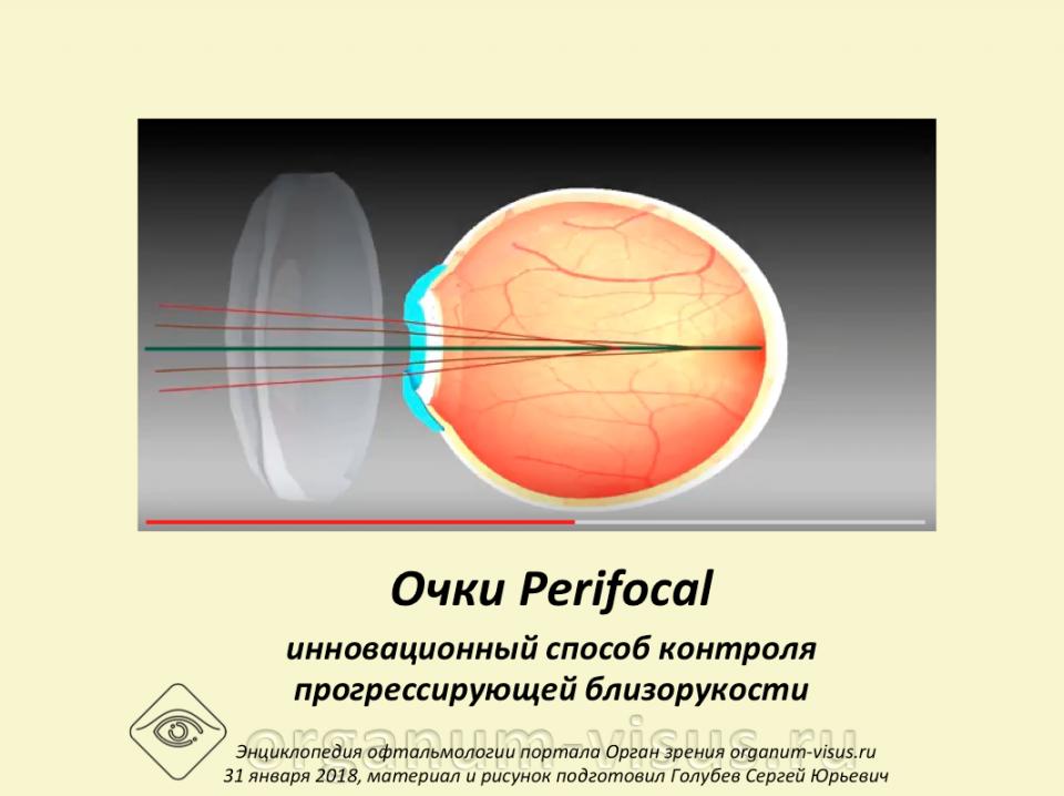 Очки Перифокал Контроль прогрессирующей близорукости