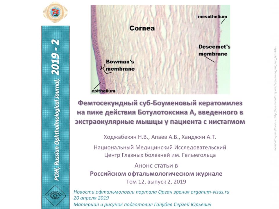 Фемтосекундный суб-Боуменовый кератомилез и Ботулотоксин