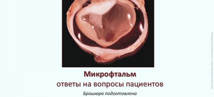 Микрофтальм Брошюра ЭСОПХ для пациента