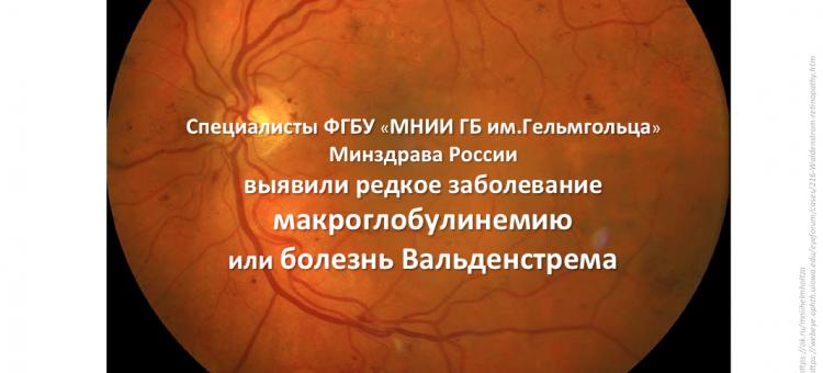 Офтальмогенетика Болезнь Вальденстрема Диагноз в НМИЦ ГБ Гельмгольца