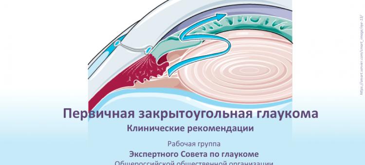 Первичная закрытоугольная глаукома КР от ЭСАВОГ