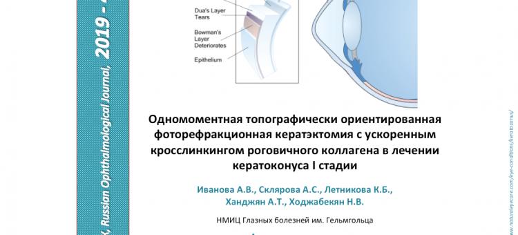 Кросслинкинг в лечении кератоконуса I стадии