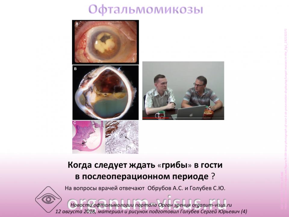 Ответы на вопросы специалистов Офтальмомикозы Осложнения
