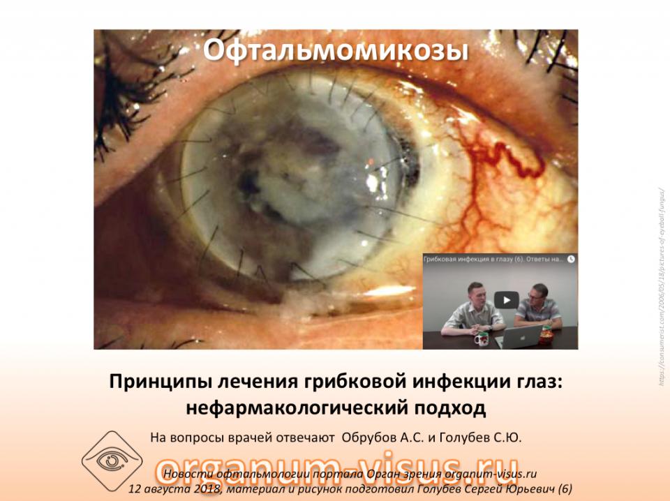 Ответы на вопросы специалистов Офтальмомикозы