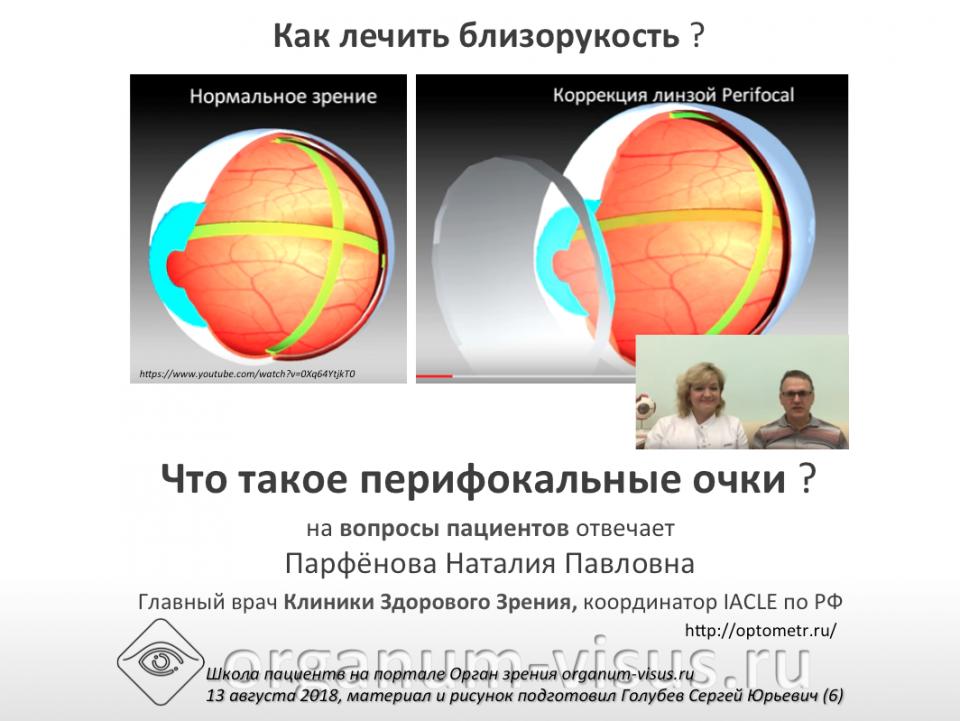Вопрос пациента Лечение миопии Очки и линзы Перифокал