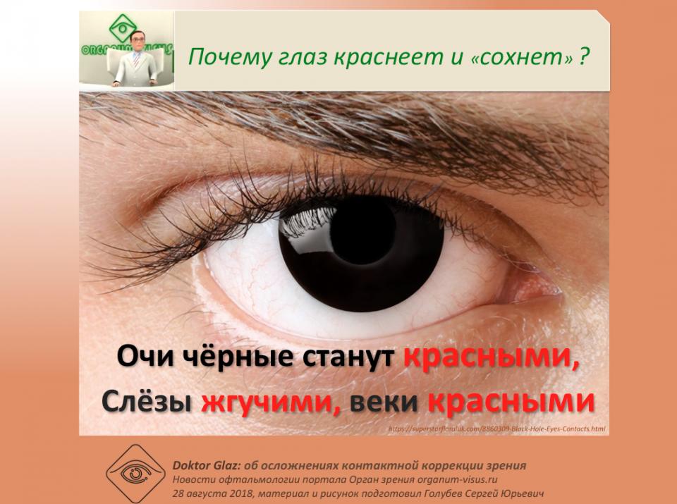 Доктор Глаз Очи черные станут красными Осложнения контактных линз