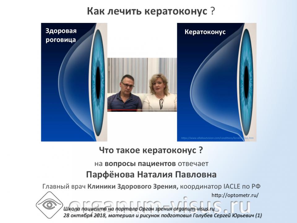 Вопрос пациента Что такое кератоконус