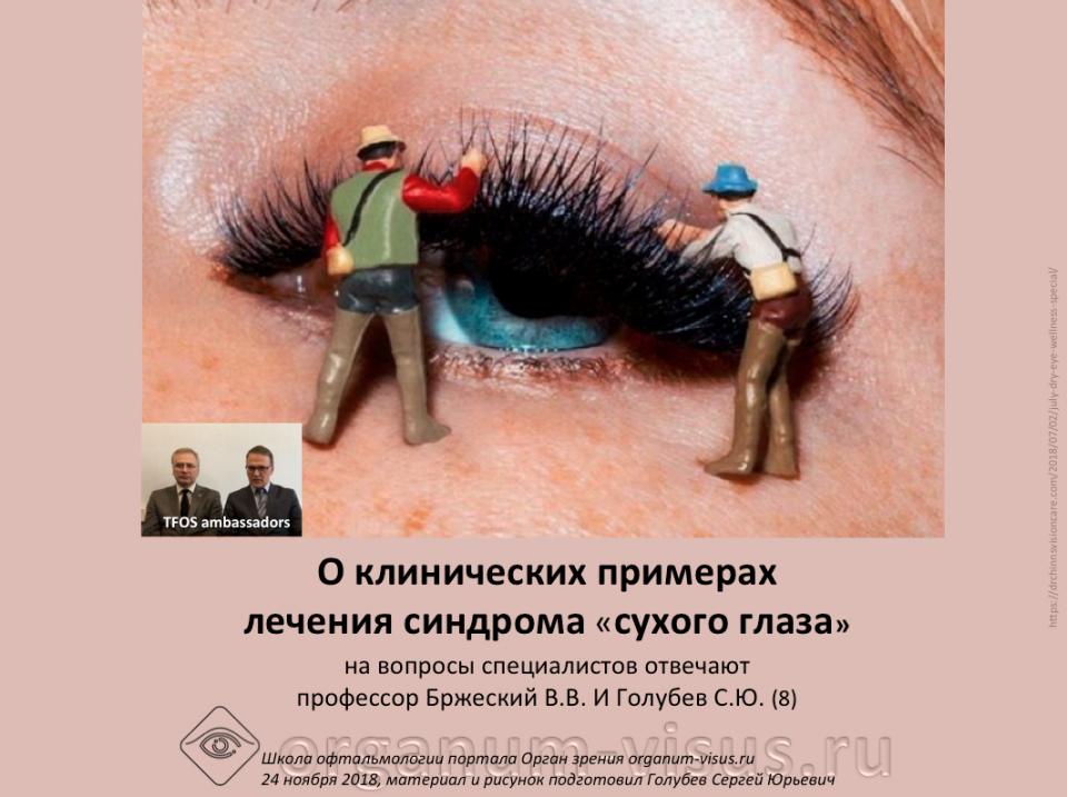 Сухой глаз Лечение О клинические примерах Оптинол