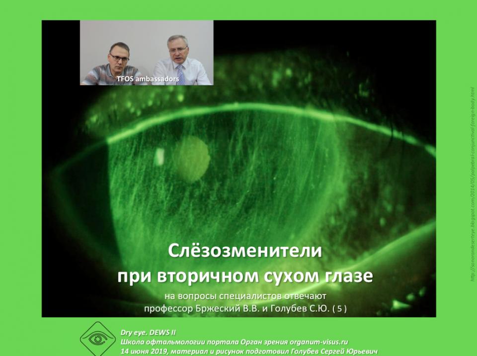 Сухой глаз Причины сухости глазной поверхности