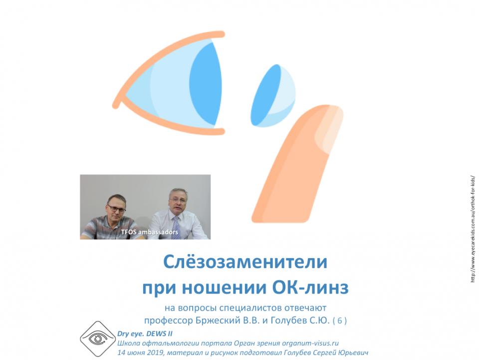 Сухой глаз и ОК линзы