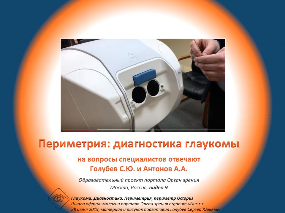 Диагностика глаукомы Периметрия Видео