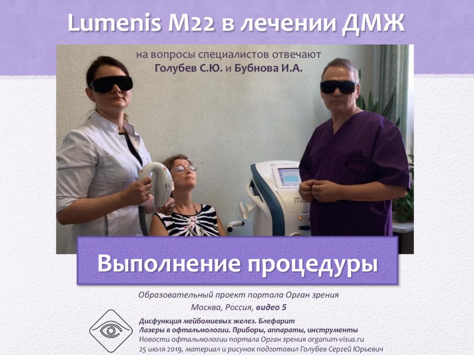 Лечение блефаритов и ДМЖ Lumenis M22 Видео 5