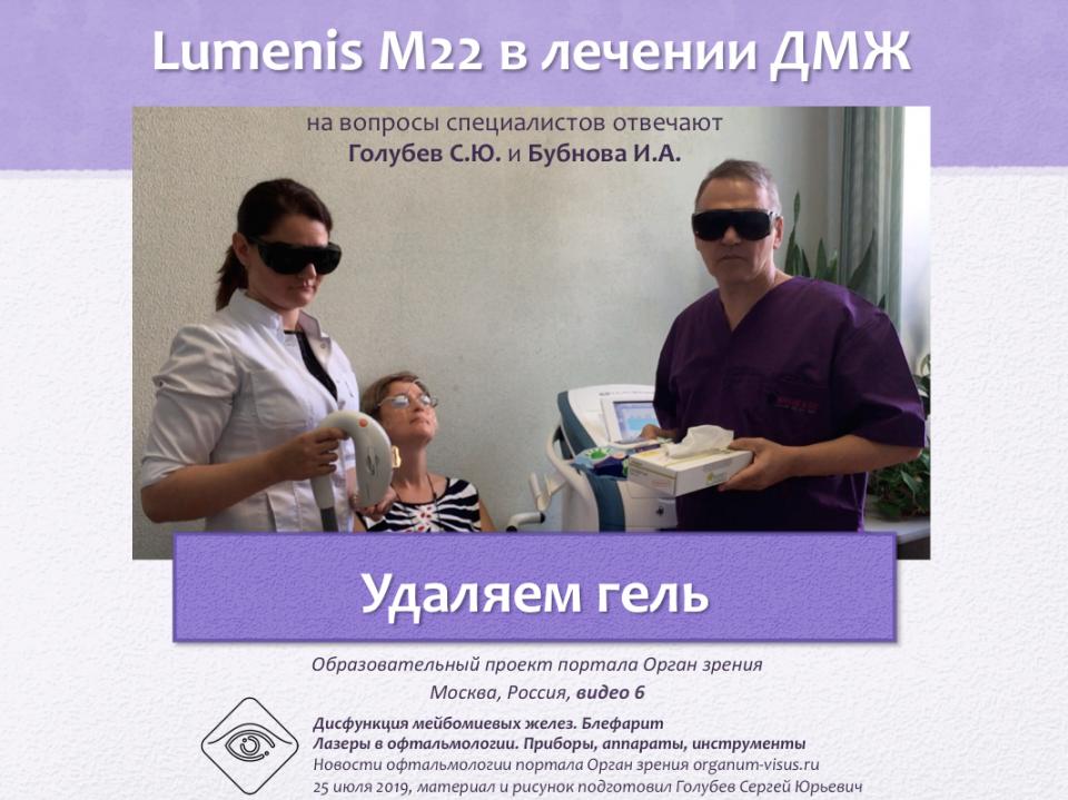 Лечение блефаритов и ДМЖ Lumenis M22 Видео 6
