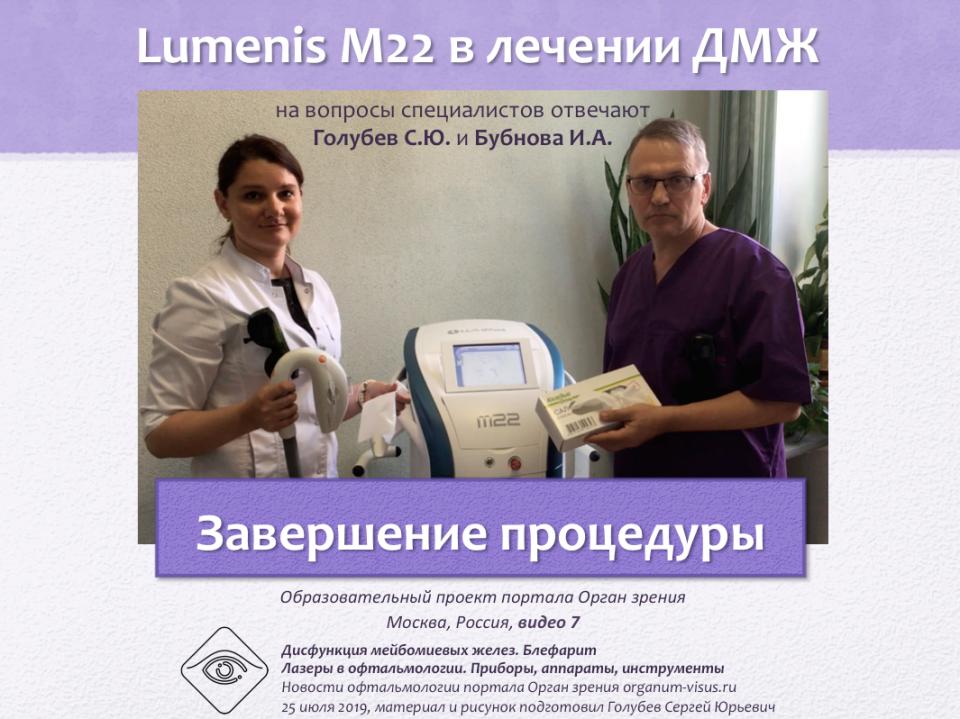 Лечение блефаритов и ДМЖ Lumenis M22 Видео 7