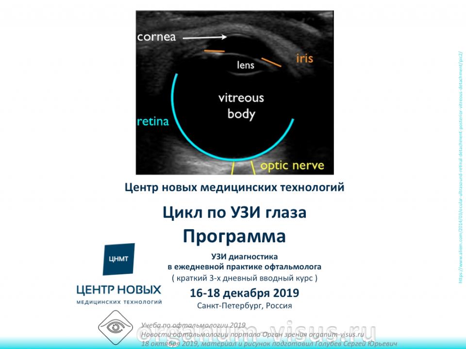 Учеба по офтальмологии УЗИ глаза ЦНМТ СПб