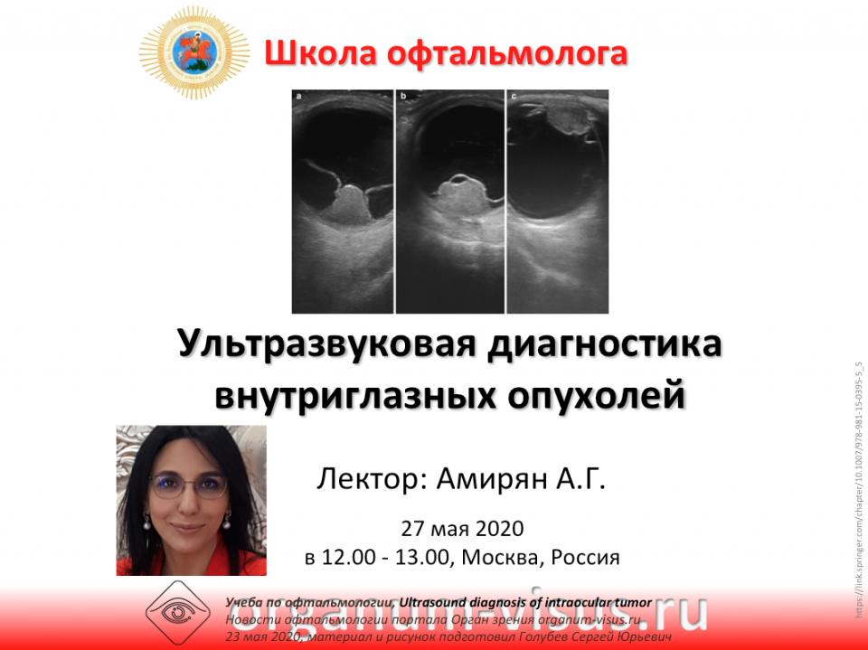 Телемедицина в офтальмологии НМИЦ ГБ им Гельмгольца Опухоли глаза
