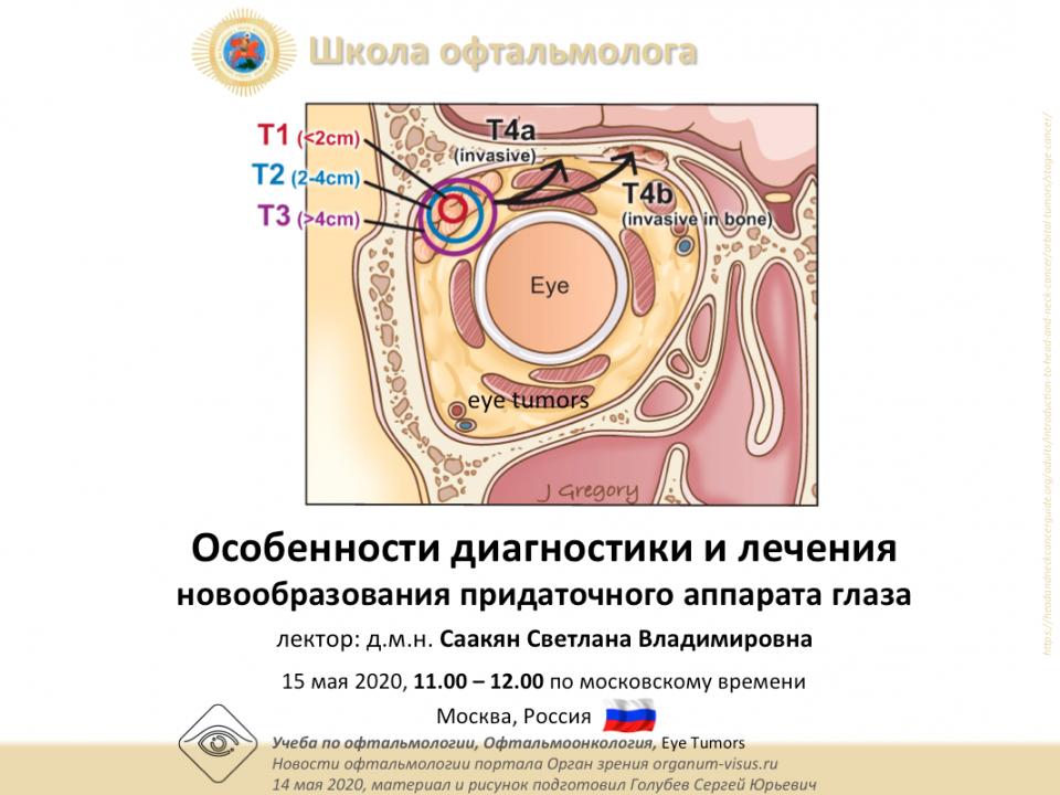 Телемедицина в офтальмологии НМИЦ ГБ им Гельмгольца Офтальмоонкология