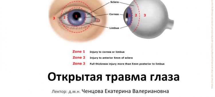 Телемедицина в офтальмологии НМИЦ ГБ им Гельмгольца Травма глаза