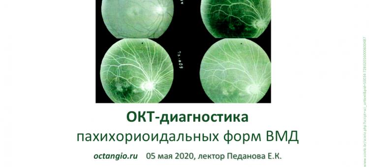 ОКТА 2020 ОКТ ангиография Лекция 3