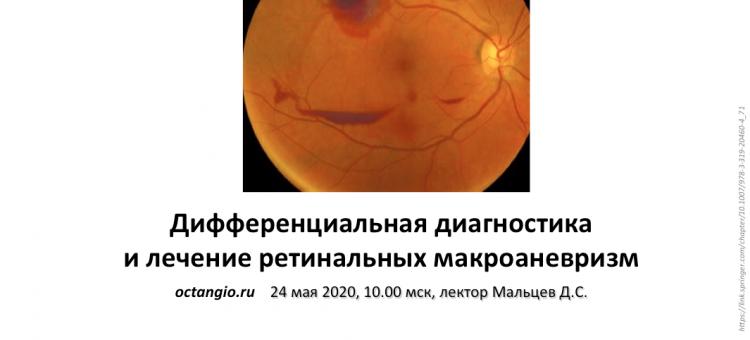 ОКТА 2020 ОКТ ангиография Лекция 6