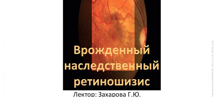 Телемедицина в офтальмологии НМИЦ ГБ им Гельмгольца Ретиношизис