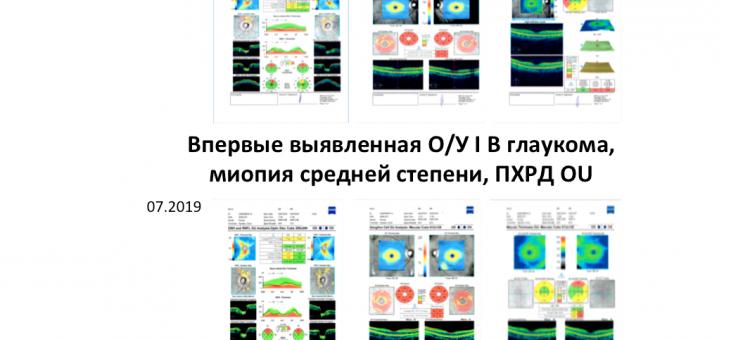 Клинический пример Глаукома Миопия Старт терапии