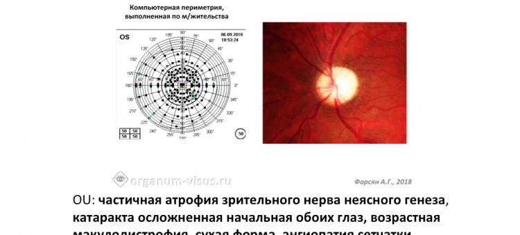 Клинический пример Глаукома или ЧАЗН