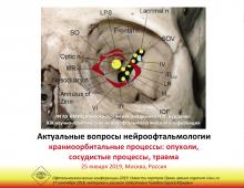 Нейроофтальмология Конференция в столице России