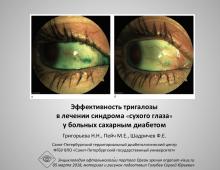 Тригалоза и сахарный диабет Григорьева Н.Н. с соавт.