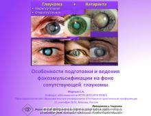 Глаукома и катаракта Особенности ведения пациентов