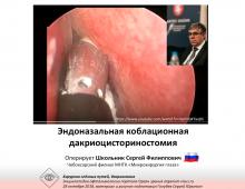 Дакриоцисториностомия коблационная Оперирует С.Ф.Школьник