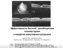 Богатая тромбоцитами плазма крови Хирургия макулярныых разрывов