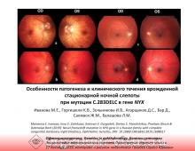 Офтальмогенетика Врожденная ночная слепота