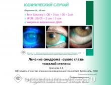 Сухой глаз Тяжелая степень Лечение