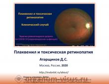 Плаквинил и токсическая ретинопатия Атарщиков Д.С.