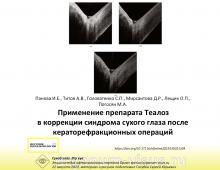 Сухой глаз Теалоз Рефракционная хирургия Панова И.Е. с соавт.
