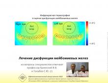Сухой глаз Лечение дисфункции мейбомиевых желез